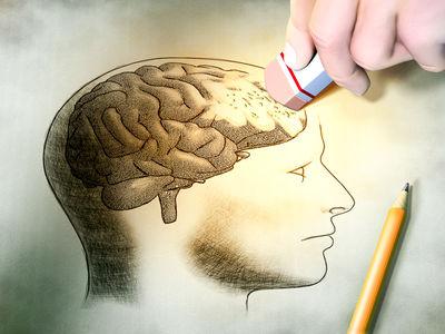 Alzheimer's Prevention Part 1