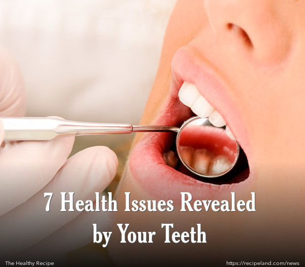 7 Health Issues Revealed by Your Teeth